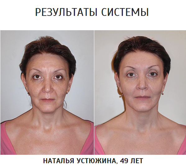 Программа возрастного изменения лица